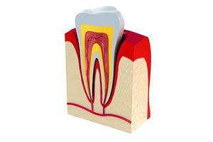 Root Canal in Ann Arbor, MI