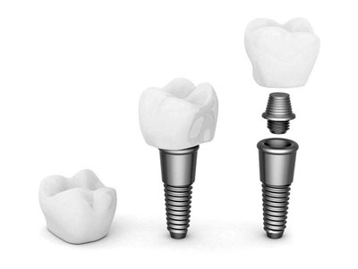 Ypsilanti MI Dentist | Washtenaw Dental Associates